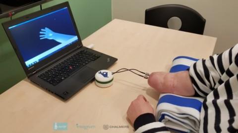 Prvá vnímajúca a obratná protetická ruka bola implantovaná