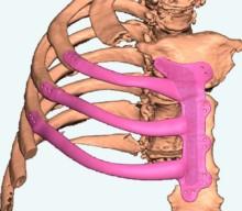 Podarila sa operácia použitím implantátu z 3D tlačiarne