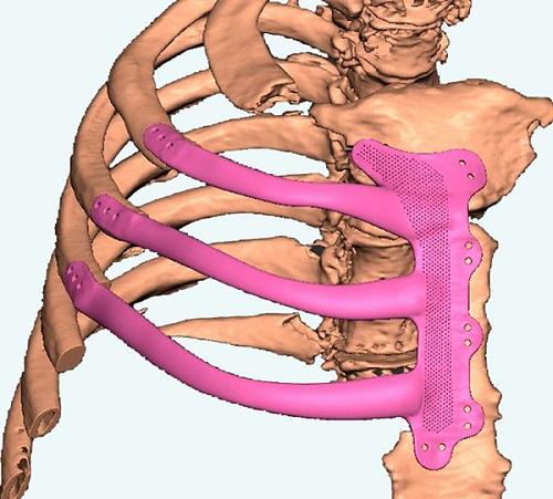 implantát z 3D tlačiarne